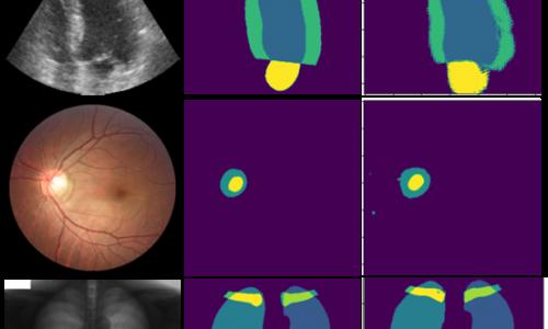 Semi-supervised segmentation of medical images.